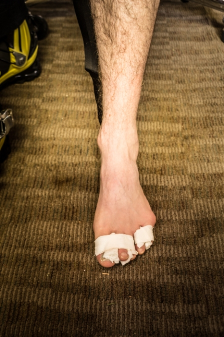 Jeremy Brodney's foot... An example of a patroller's struggle